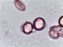 Aesculus pavia – Red Buckeye