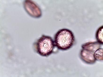 Aesculus pavia–Red Buckeye