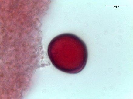 Asclepias syriaca–Common Milkweed