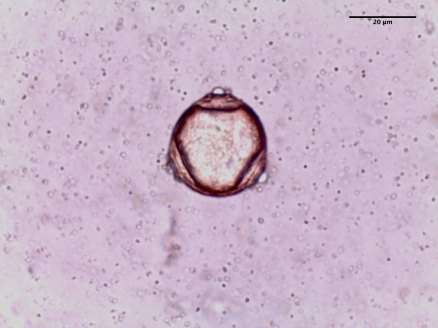 Betula pendula–Silver Birch