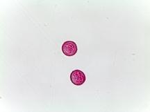 Cephalotaxus harringtonia–Needled Evergreen