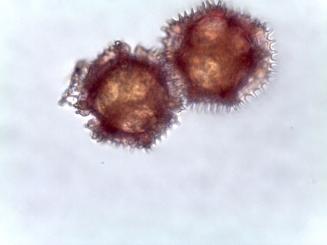 Cichorium intybus – Chicory