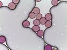 Trillium luteum–Yellow trillium