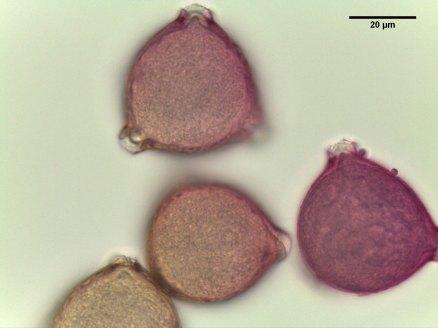 Elaeagnus umbellata–Japanese Silverberry