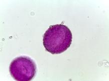 Helonias bullata–Swamp Pink