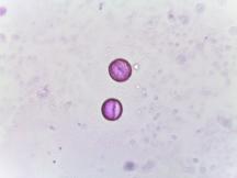 Hypericum densiflorum–Bushy St. John's Wort