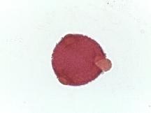 Lamium purpureum–Purple Deadnettle