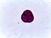 Leucothoe fontanesiana–Fetter-Bush