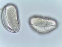 Magnolia virginiana–Sweetbay