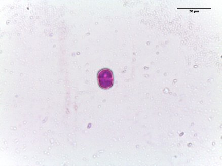 Myosotis sylvatica–Forget-Me-Not