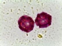 Taraxacum officinale – Dandelion