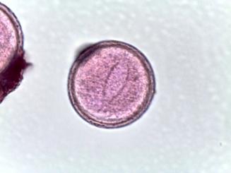 Trillium grandiflorum – Wood Lily