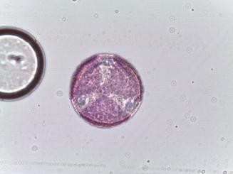 Ranunculus spp. – Buttercup