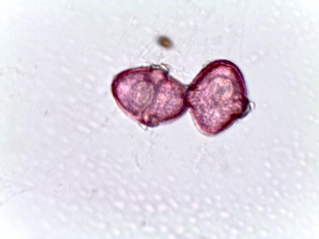Agrimonia spp. – Agrimony