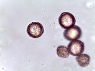 Viburnum rhytidophyllum – Leatherleaf Viburnum