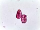 Aesculus carnea – Red Horse Chestnut
