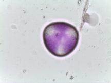 Pyrus calleryana – Callery Pear