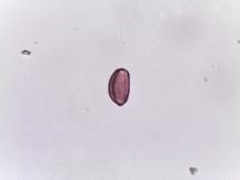 Tradescantia pallida – Spider Lily